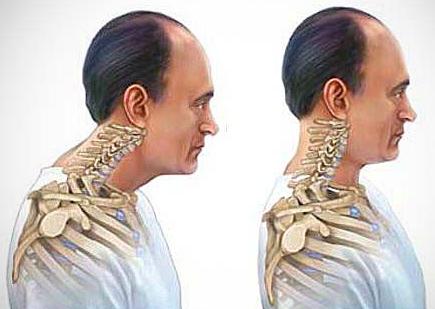 alignement-posture-cou